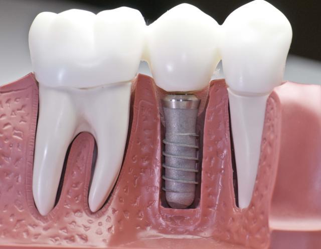 Протезирование после удаления зубов: сколько времени заживает десна, когда можно делать процедуру и через сколько дней ставить съемные изделия и коронки?