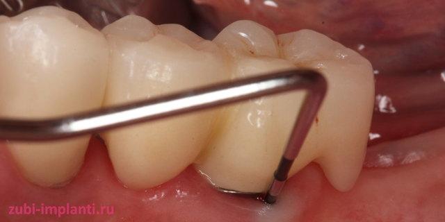 Что делать, если выпал имплант зуба штырем: причины, по которым это происходит, а также диагностика и лечение, проводимые для возможности сохранить протез