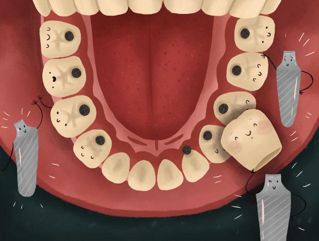 Импланты зубов на верхней челюсти: как ставят, какие нюансы бывают и сколько единиц нужно при полном отсутствии?
