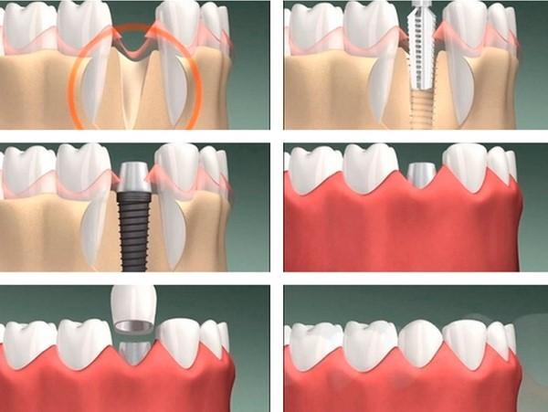 Ставить имплант после удаления зуба: через какое время можно и когда устанавливать нельзя, через сколько вставляют при немедленной имплантации и иных методах?
