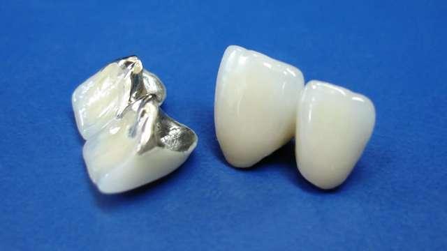 Коронки на зубы: из какого материала бывают, из какого металла лучше делать, как выглядят, когда ставят такие виды протезов, каков срок службы?