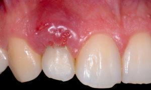 Импланты зубов: сколько служат, что потом делать при замене отслужившей коронки, держится ли протез больше 10 лет, и общие сведения, факторы надежности, риски